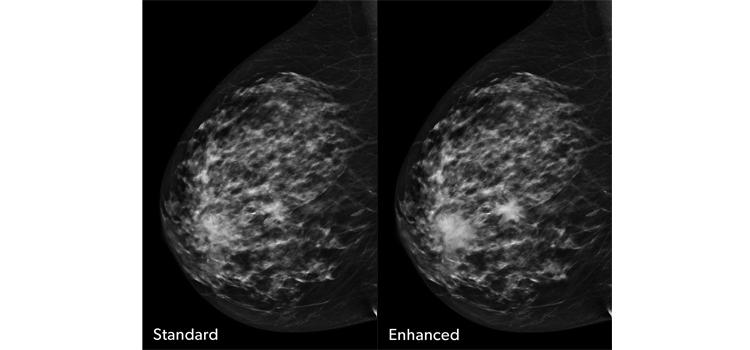 Scatter radiation digital tomosynthesis breast