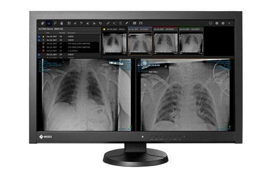 Solution provides essential mobility for radiologists displaced from standard work environments