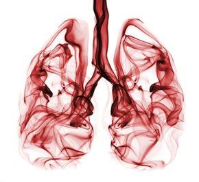 Gensignia, lung cancer, LDCT, microRNA, ASCO