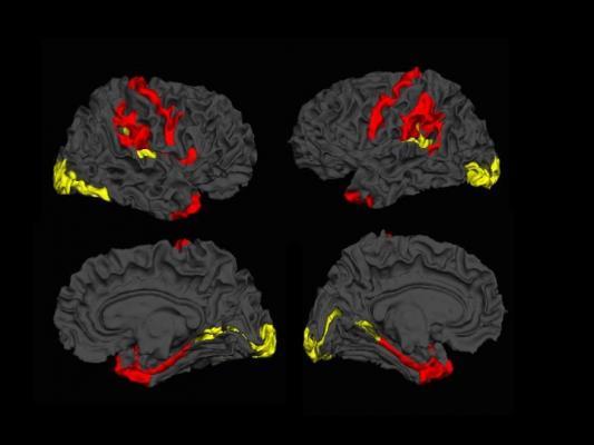 MRI, schizophrenia, Lawson Health Research Institute, London Ontario Canada, Lena Palaniyappan