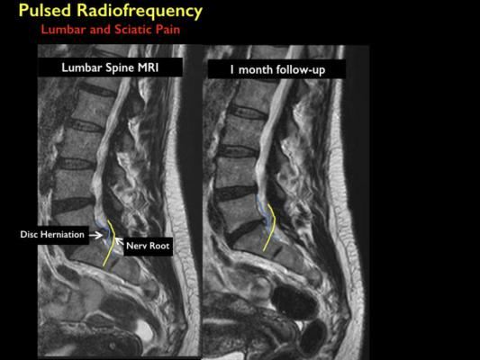 Minimally Invasive Treatment Provides Relief From Back
