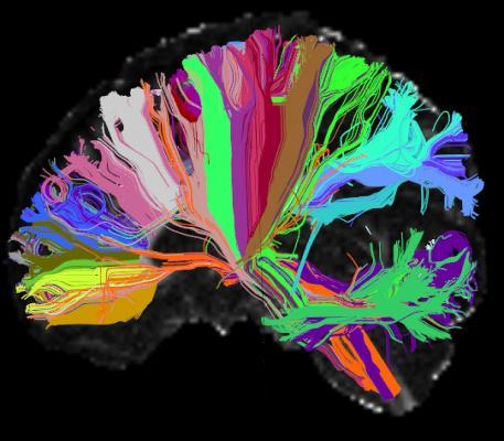 NIH, Human Connectome Project, HCP, brain MRI, predict behavior