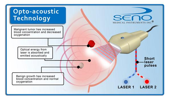 Seno Medical Instruments, Imagio breast imaging system, PIONEER Study, optoacoustics