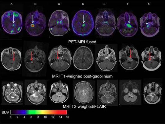 PET/CT Helps Predict Therapy Effectiveness in Pediatric Brain Tumors