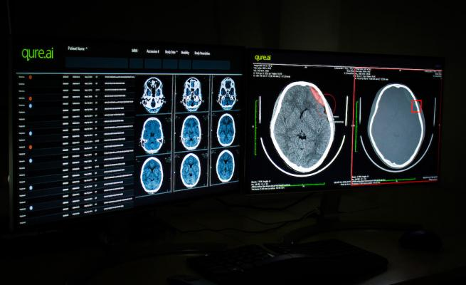 qER-Quant will help enable faster diagnosis and help track patient progression over time