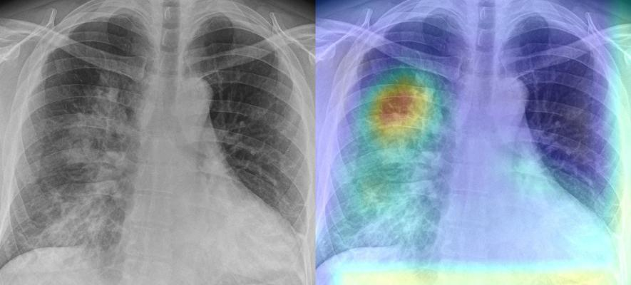 World's largest deployment of a radiology-based AI diagnostic solution for COVID-19 using AI-based chest X-ray technology