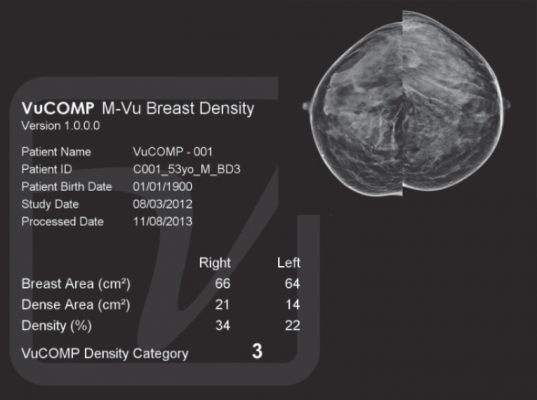 mammography systems women's healthcare vucomp m-vu breast density