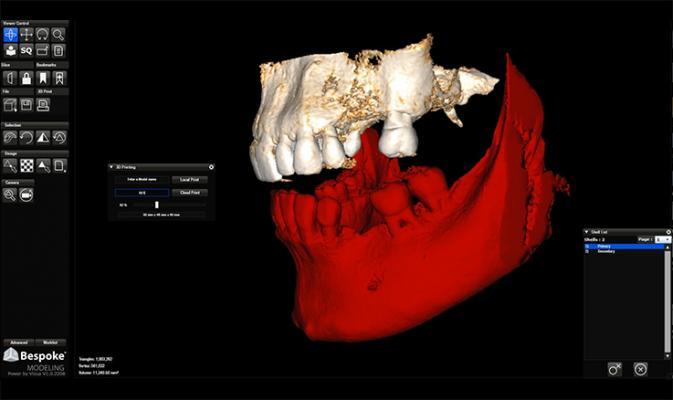 vizua 3d systems software rsna 2013 advanced visualization