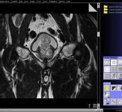 prostate cancer, active surveillance, European Association of Urology study