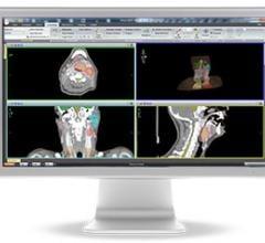 Elekta Monaco 5 Treatment Planning System Radiation Therapy VMAT IMRT