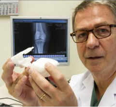 First Patient Successfully Treated with X-Ray Based Knee Guide Technology