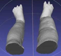 Portable 3-D Scanner Assesses Patients with Elephantiasis
