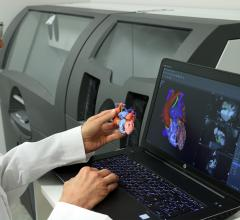 3D Systems Earns Additional FDA Clearance for D2P Medical 3-D Printing Software