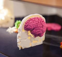 Philips, Ultimaker, MRI scans, 3-D printing, replicas, ISMRM