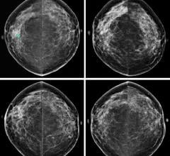 ACR Recommends More Aggressive Breast Cancer Screening for Higher-Than-Average-Risk Women