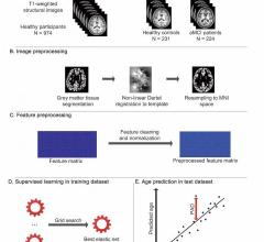 Researchers have developed an artificial intelligence (AI)-based brain age prediction model to quantify deviations from a healthy brain-aging trajectory in patients with mild cognitive impairment, according to a study published inRadiology: Artificial Intelligence. The model has the potential to aid in early detection of cognitive impairment at an individual level.