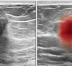 September 28, 2021—A computer program trained to see patterns among thousands of breast ultrasound images can aid physicians in accurately diagnosing breast cancer, a new study shows.
