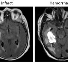 Examples of axial FLAIR sequences from studies within dataset A. From left to right: a patient with a 'likely normal' brain; a patient presenting an intraparenchymal hemorrhage within the right temporal lobe; a patient presenting an acute infarct of the inferior division of the right middle cerebral artery; and a patient with known neurocysticercosis presenting a rounded cystic lesion in the left middle frontal gyrus. Image courtesy of Radiological Society of North America
