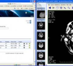 Cloud Computing Supports Orthopedic Image Exchange