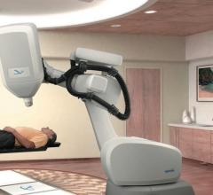 First Patient Treated in Online Adaptive Radiotherapy Trial With CyberKnife System
