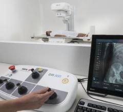 Agfa Brings Intelligent Radiography to RSNA 2018