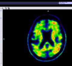 Alzheimer's Association, ACR, trial, amyloid, PET, diagnosis, IDEAS