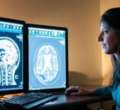 A new study by Rashi Mehta--a researcher with the WVU School of Medicine and Rockefeller Neuroscience Institute--finds that focused ultrasound may induce an immunological healing effect in the brains of Alzheimer's patients.