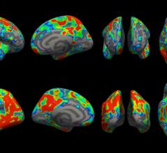 Colored areas of the brain represent regions where the loss of brain synapses in people with early-stage Alzheimer's was greater than people with normal cognitive function.