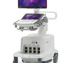 Canon's Aplio a series of ultrasound systems