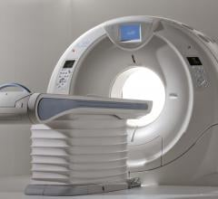 New York Hospital Finds Significant Cost Savings With Toshiba's Aquilion One CT