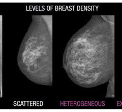 Volpara's breast density scale