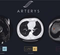 Arterys Receives First FDA Clearance for Oncology Imaging Suite With Deep Learning