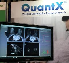 Artificial Intelligence Could Yield More Accurate Breast Cancer Diagnoses