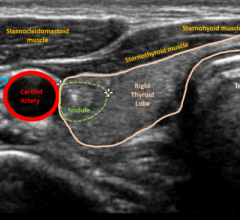 Using artificial intelligence to predice risk of thyroid cancer on ultrasound.
