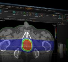 #RSNA19 The Swedish MedTech company will demo the machine learning capabilities of its flagship RayStation and RayCare systems