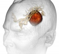 targeted radiosurgery, stereotactic radiosurgery, whole-brain radiation, brain tumor metastases, Cureus, University of Missouri School of Medicine study