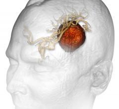 Brainlab, Automatic Brain Metastases Planning software, radiosurgery, neurosurgery, AAPM