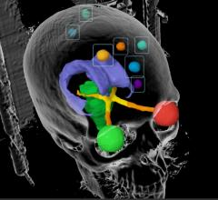 Study Compares Radiosurgery and Whole-Brain Radiation in Lung Cancer Patients With Multiple Brain Metastases