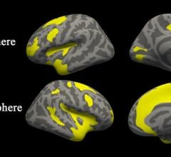 MRI Uncovers Brain Abnormalities in People With Depression and Anxiety