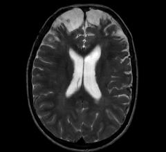 brain with chronic traumatic injury