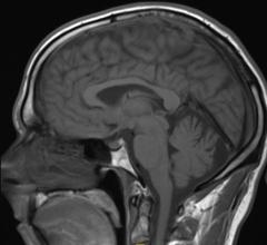 MRI, fluorine tracer agent, UC San Diego, Eric Aherns