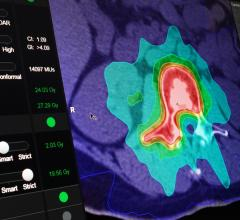 BrainLAB Announces FDA Clearance For Two New Indication-Specific Radiosurgery Software Applications