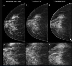 Breast Tomosynthesis Increases Cancer Detection Over Digital Mammography