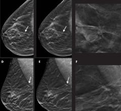 Images in a 55-year-old woman with a spiculated mass localized in the upper central quadrant (arrow in A, B, D, and E) of right breast detected with digital breast tomosynthesis (DBT) plus synthetic mammography (SM). Breast density was classified as category C with the Breast Imaging Reporting and Data System. Mass was invasive ductal carcinoma, stage I, and was estrogen and progesterone receptor positive and human epidermal growth factor receptor 2 negative. A, Image from SM in craniocaudal view. B, Single