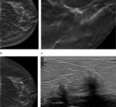 DBT, sometimes called 3-D mammography, emerged in the last decade as a powerful tool for breast cancer screening