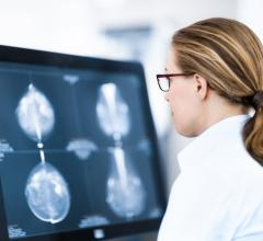 Neiman Institute Releases Breast Screening Bundle Tool