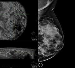 breast density reporting bill, Mississippi, 2016