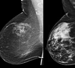 automated volumetric breast density, Elizabeth Wende Breast Care, EWBC, American Journal of Roentgenology, mammographic sensitivity