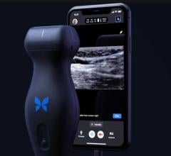 Butterfly Network Inc. is launching its next-generation Butterfly iQ+ point-of-care-ultrasound (POCUS) technology that can turn a smartphone into a diagnostic imaging system. It offers a new needle guidance app.