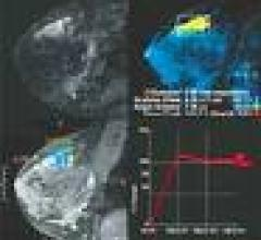 CADstream MRI-CAD